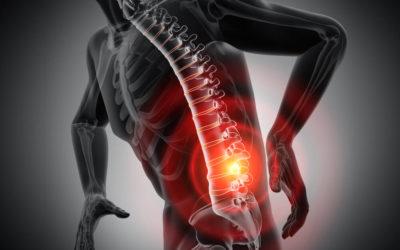 Rückenschmerzen Blog 400x250 1
